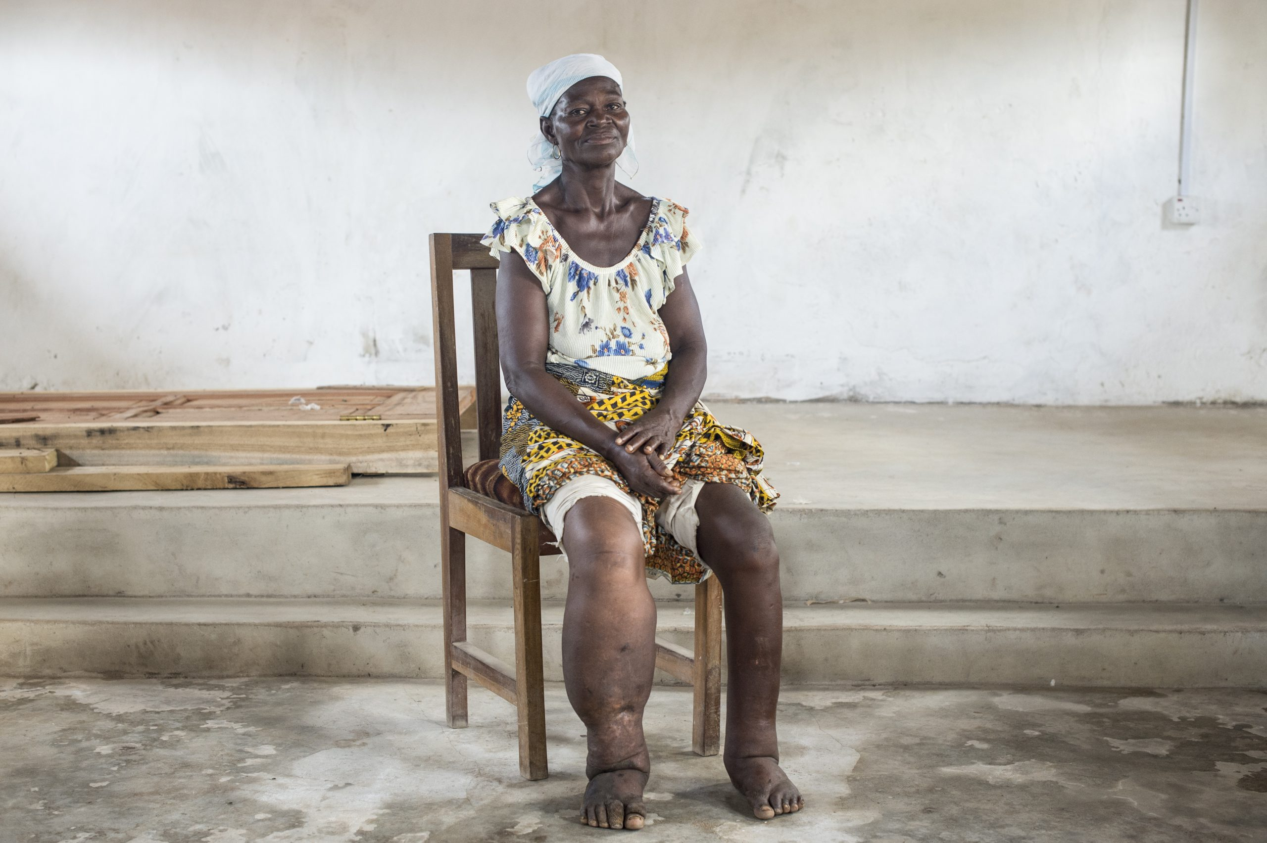 A patient in Ghana showing lymphedema (swelling) of the leg. Image credit: DNDi/Cosmos/Sylvain Cherkaoui