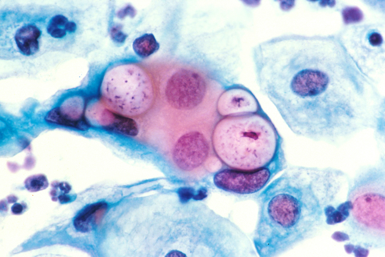 Human pap smear showing clamydia in the vacuoles at 500x and stained with H&E.