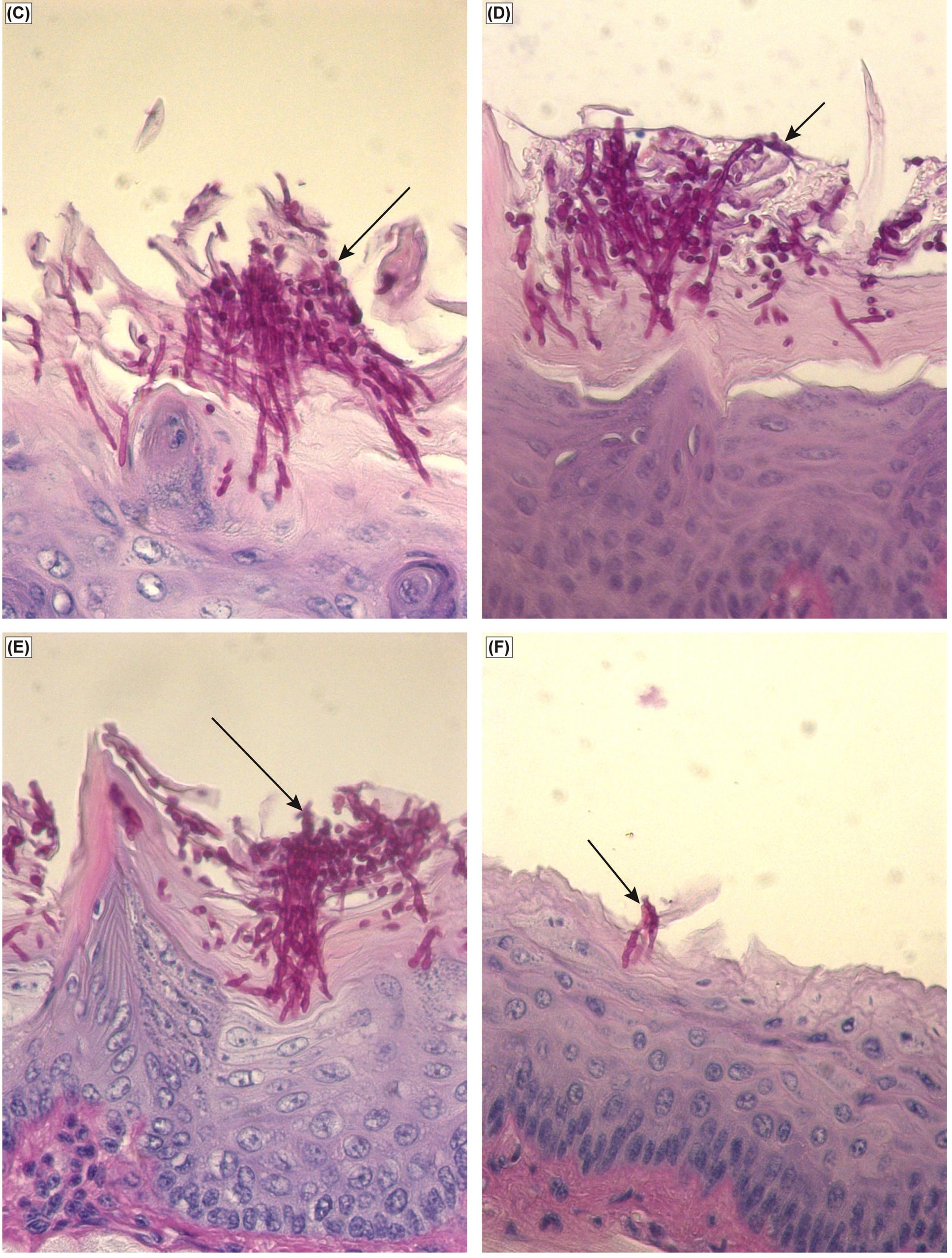 Efficacy of Pichia spent medium (PSM) in an experimental murine morel of oral candidiasis. Histology analyses of tissue section of tongue from mouse infected with Candida, followed by (C) no treatment or treated with (D) vehicle control, (E) nystatin, or (F) PSM. Arrows – fungal hyphae. Image credit: Mukherjee PK, Chandra J, Retuerto M, Sikaroodi M, Brown RE, et al. (2014)